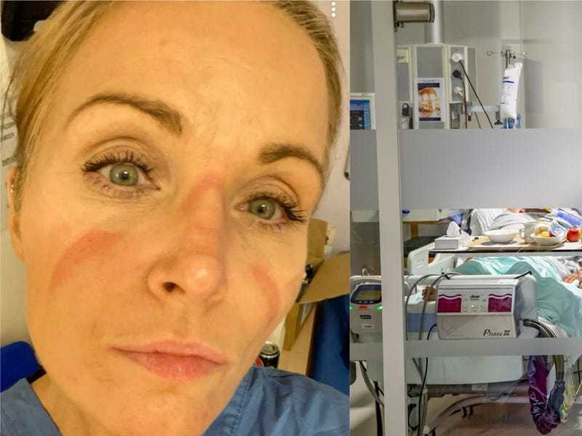 NHS staff 'burned out' and 'desperately sad' after a year of Covid-19