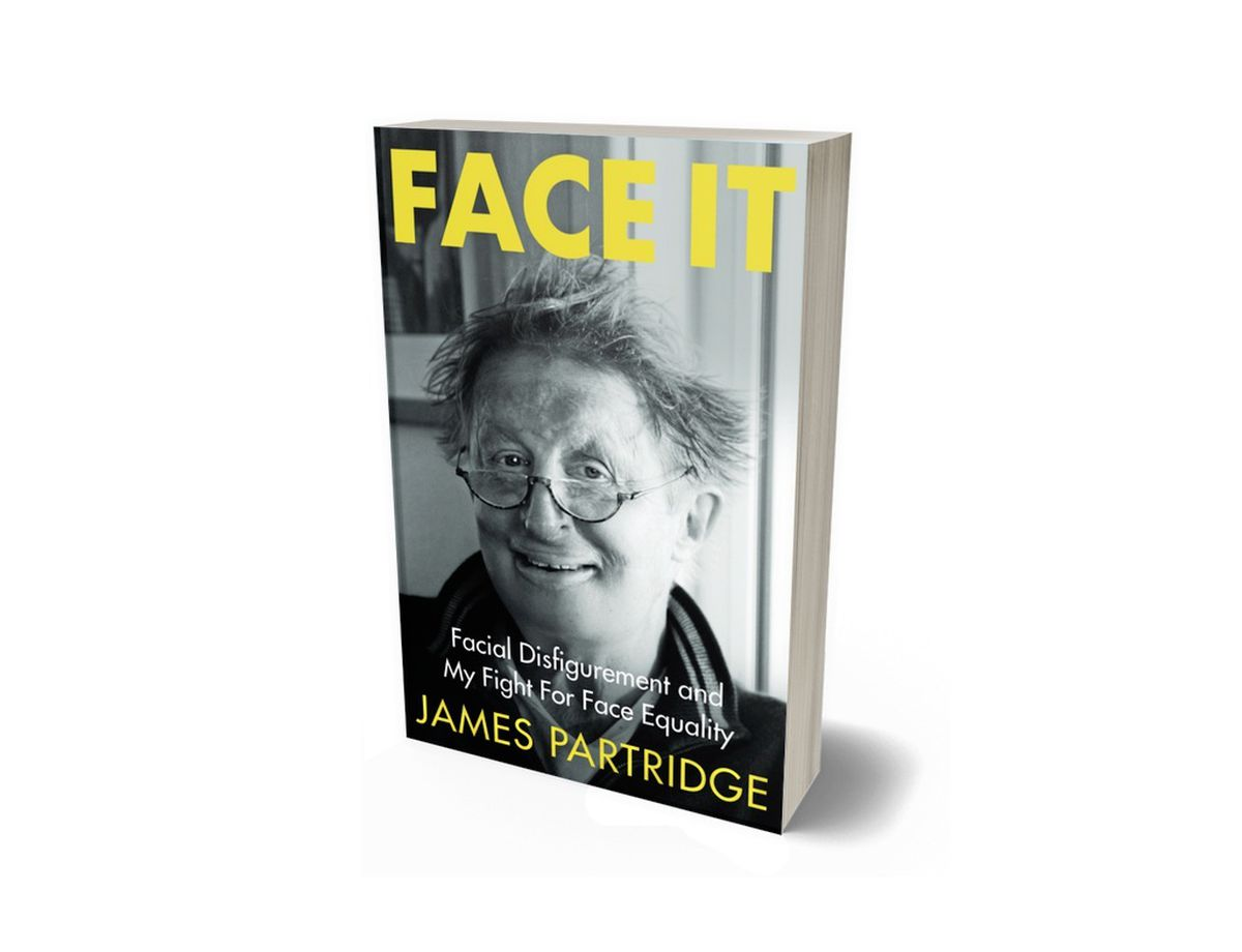 FACE IT: Facial Disfigurement and My Fight for Face Equality (28390096)
