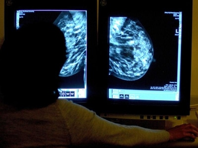 Breast cancer campaigners call for drug deal as talks continue