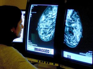 Concern over cancer patients not seeking help